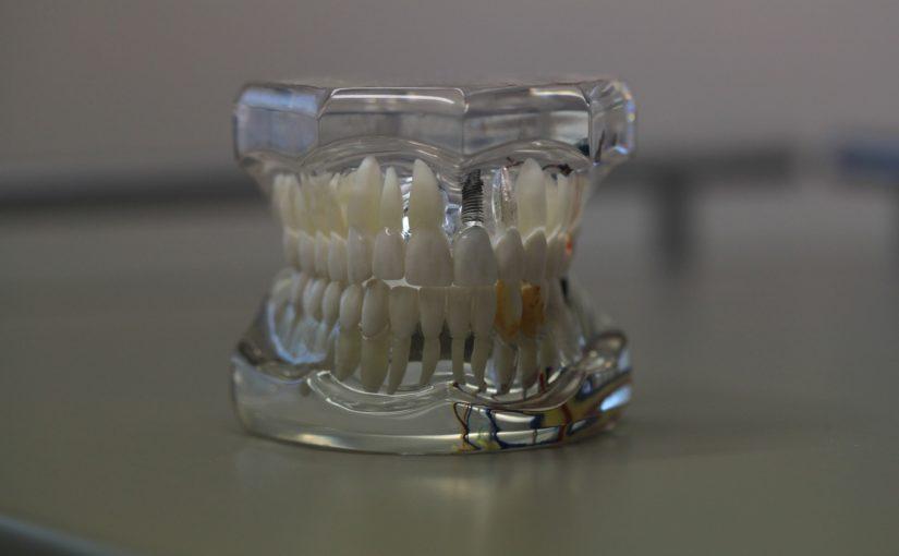 Złe podejście żywienia się to większe braki w zębach natomiast dodatkowo ich brak